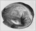 PSM V82 D547 Blister pearl formed over a diseased visceral hump.png