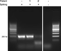 Parasite130116-fig4 Entamoeba gingivalis.tif