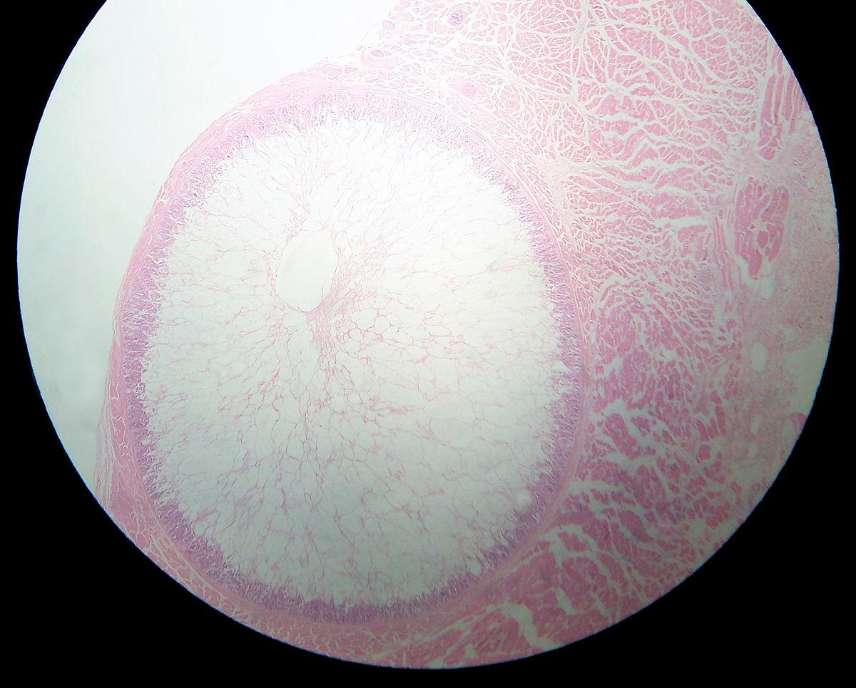 sarcocystis wikipedia