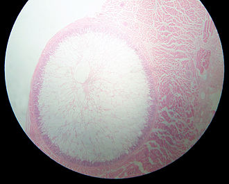 Sarcocystis - Sarcocystis cyst in a sheep oesophagus. The cyst is approximately 4 mm across.