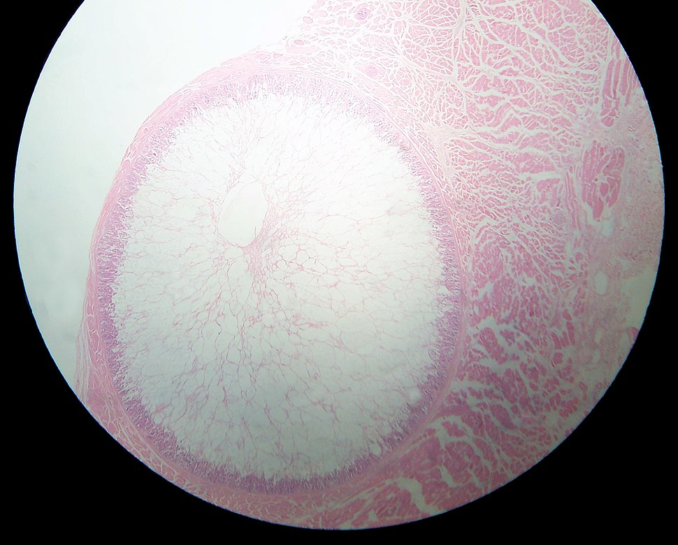 Sarcocystis in sheep oesophagus2