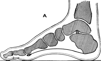 Heel - Sagittal section through the foot