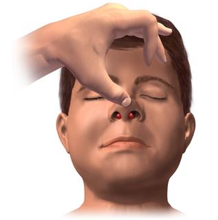 Nasal septal hematoma