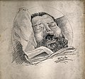 Syphilis; face of a dead man with erosion of the nose, 1885 Wellcome V0010393.jpg