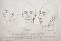 The head of John Thurtell after his hanging. Pen drawing by Wellcome L0023712.jpg