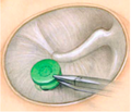 Tympanic Membrane Patcher.png