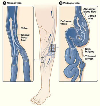 Can Varicose Veins Recede Naturally