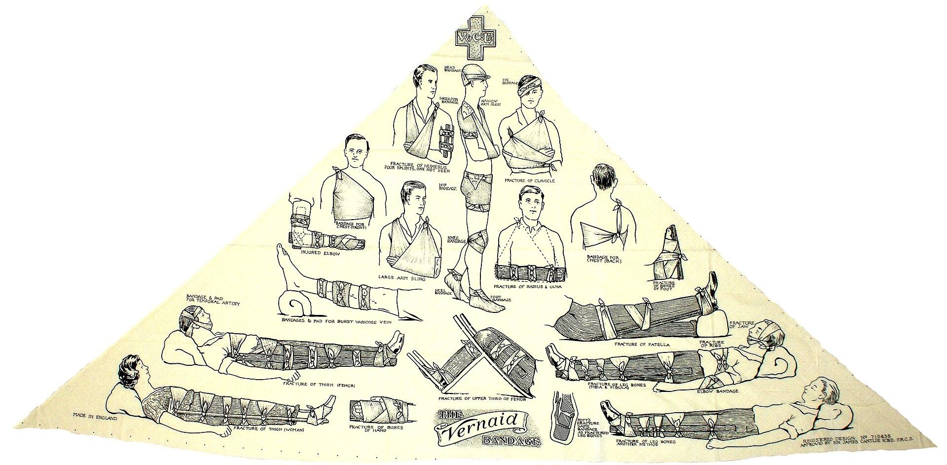 Esmarch Bandage Wikipedia