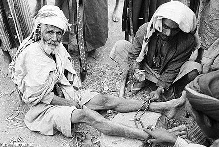 Yemeni tribesman being held as a hostage by al-Badr forces Yemen 1962 60.jpg