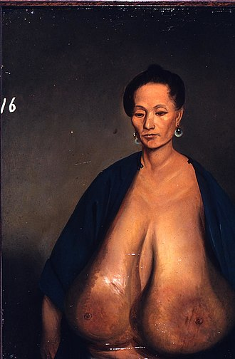 Breast hypertrophy - A painting by Lam Qua of Lu-shi, age 42, on April 17, 1848, prior to breast reduction surgery.
