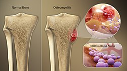 3D Medical Animation still shot of Osteomyelitis bone