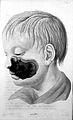 """A. L. Richter """"Der wasserkrebs..."""", 1828, tab.I Wellcome L0019260.jpg"""
