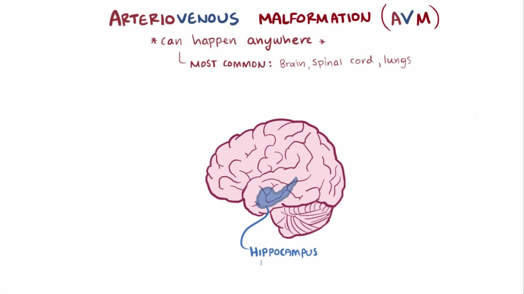 File:Arteriovenous malformation video.webm - Wikimedia Commons