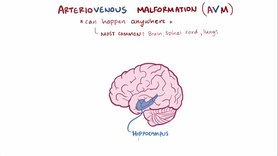 Archivo:Arteriovenous malformation video.webm