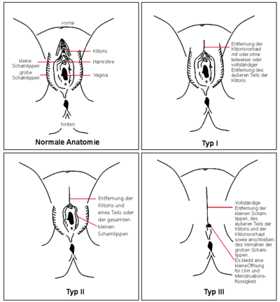 geile vagina bilder kvh piercing