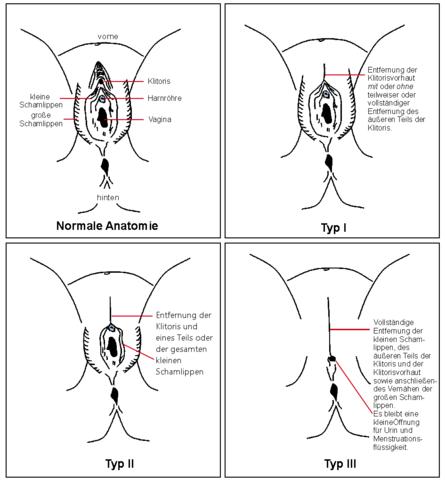 Porno Geschichte weibliche Beschneidung