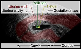 Cervical pregnancy - with descriptions.jpg