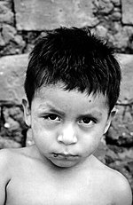 Black and white photo of a young boy with a swollen right eye