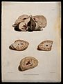 Four sections of diseased brain. Coloured stipple etching by Wellcome V0009782ER.jpg