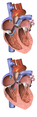 Heart Normal vs. Abnormal Flow To Lungs.png
