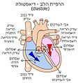 Heart diastole he.jpg