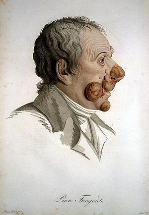 La racine du persil de la pigmentation sur la personne