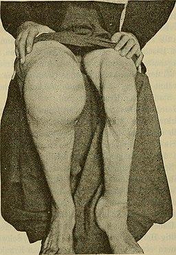 Rheumatoide Arthritis: Vorbeugung