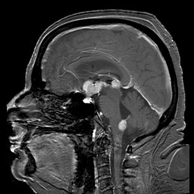 Primary central nervous system B-cell non-Hodgkin lymphoma.jpg