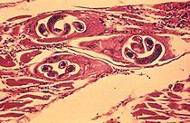 mi a veszélyes trichinella távolítsa el a parazitákat a gyermek testéből