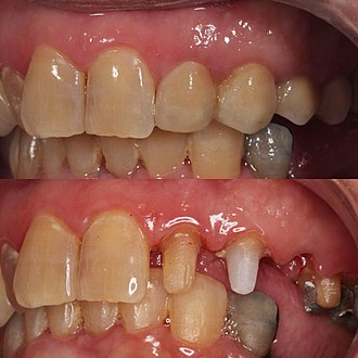 Zirconium dioxide - High translucent Zirconia bridge layered by porcelain and stained with luster paste