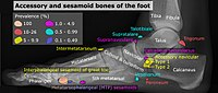 Accessory and sesamoid bones of the foot - lateral projection.jpg