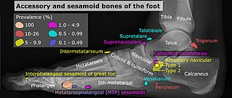 Sesamoid bone - Image: Accessory and sesamoid bones of the foot lateral projection