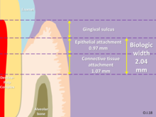 Crown (dentistry) - Wikipedia