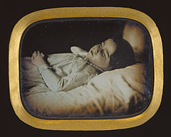 Carl Durheim, Postmortem of a Child, Getty 64235.jpg