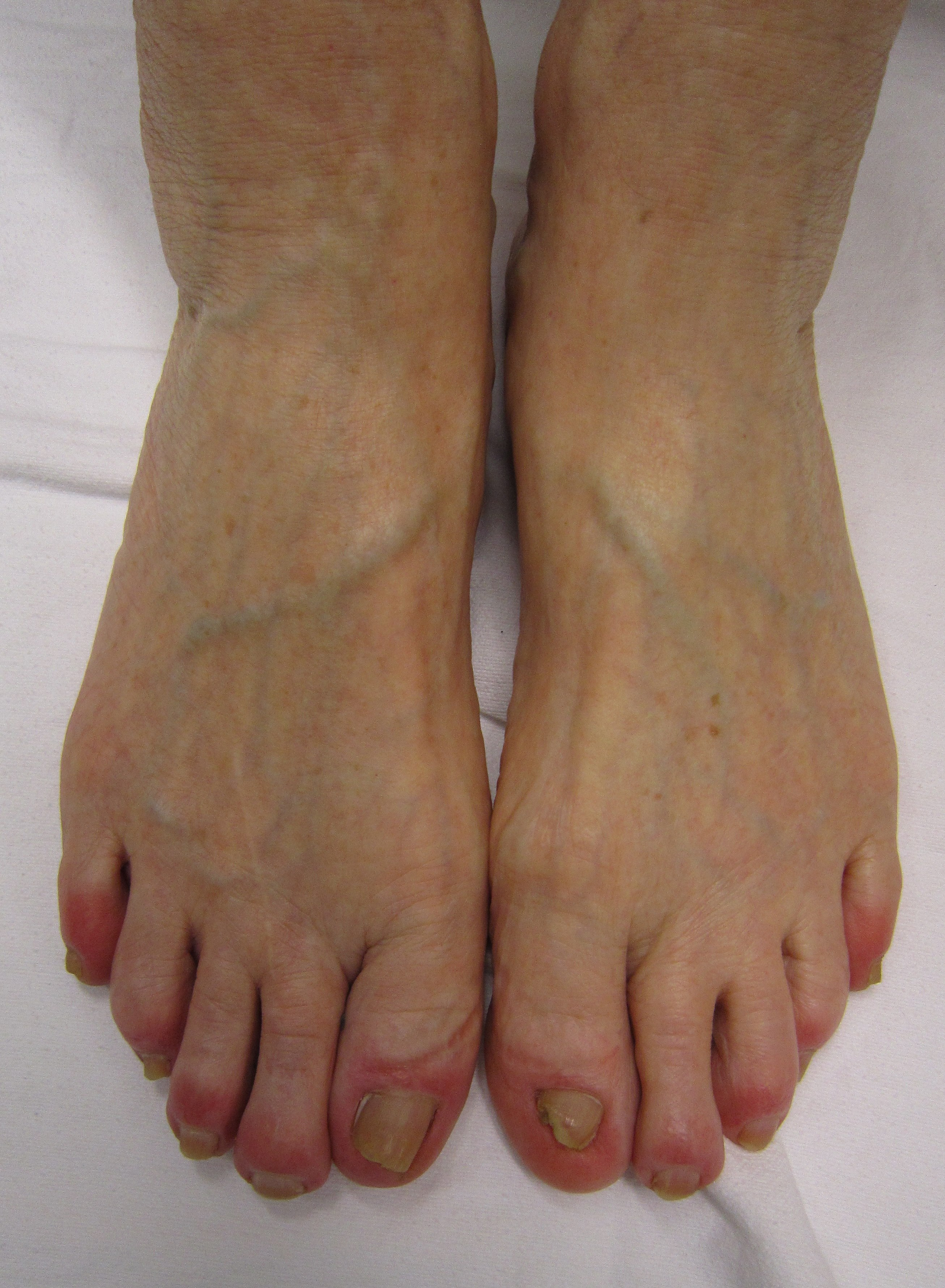 Measuring Your Foot For Running Shoes
