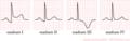De-Stadia pericarditis (CardioNetworks ECGpedia).png