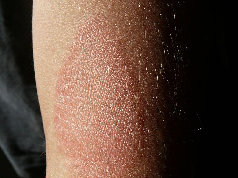 File:Dermatite o eczema atopico avambraccio 2015.jpg