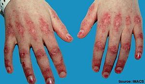 Dermatomyositis2.jpg