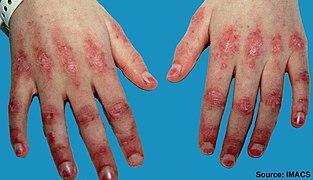 Dermatomyositis - Wikipedia