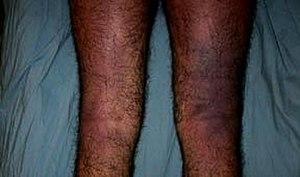 Dilawar (torture victim) - Forensic photo of Dilawar's pulpified legs
