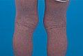 Eczema (14100950936).jpg