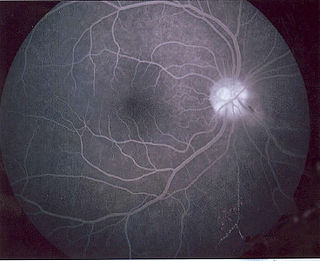 Fluorescein angiography technique for examining the circulation of the retina and choroid of the eye