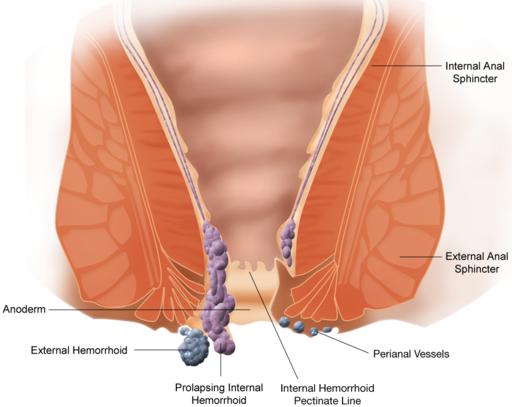 البواسر Hemorrhoid