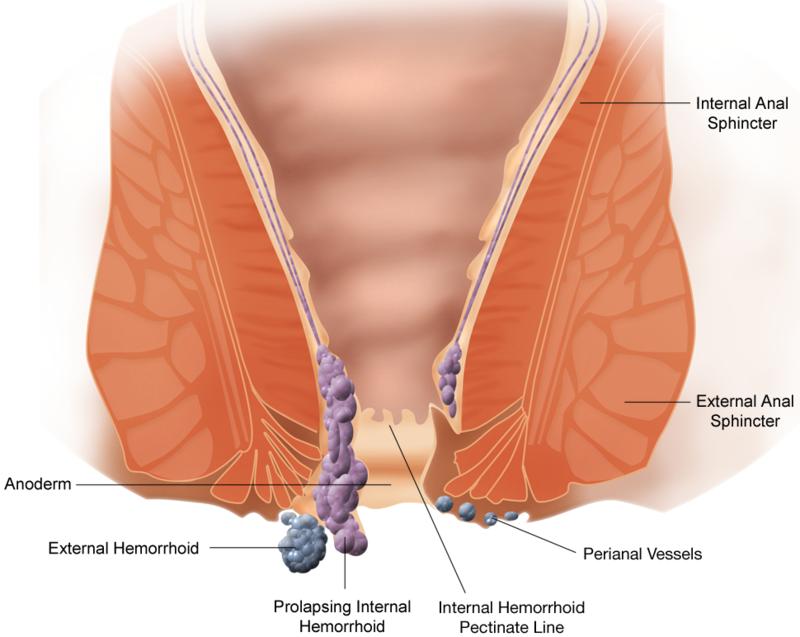 وصفات لعلاج البواسير ، البواسير وعلاجها بالطرق الطبيعيه