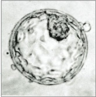 Somatic cell nuclear transfer - Human Blastocyst, showing the inner cell mass (top, right).