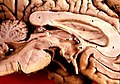 Human brain left midsagitttal view closeup description.JPG
