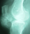 Inflammation of the infrapatellar fat (Hoffa's disease) x-ray of ligament ossification.png