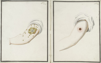 Inoculation - Comparison of smallpox (left) and cowpox (right) inoculations 16 days after administration