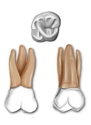 Maxillary first molar - Maxillary first molar