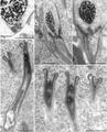 Parasite170144-fig01 spermiogenesis Chimaericola leptogaster.png